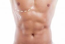 Ginecomastia sau dezvoltarea excesivă a sânului la bărbat