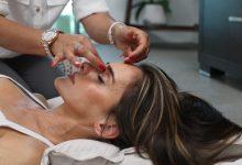 acupunctura bucuresti